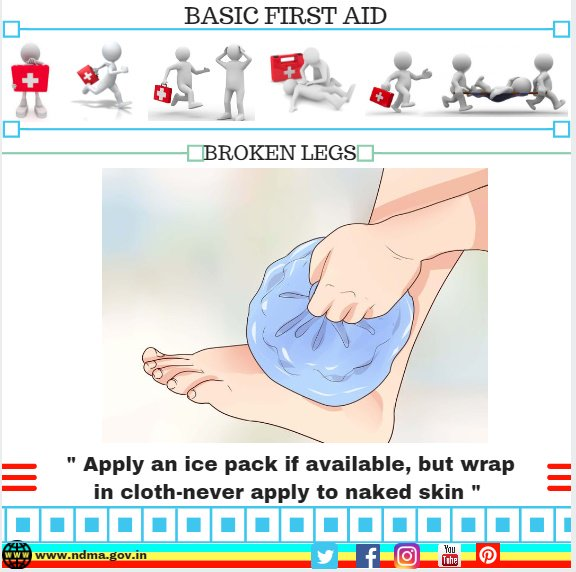 Apply an ice pack if available, but wrap in cloth-never apply to naked skin