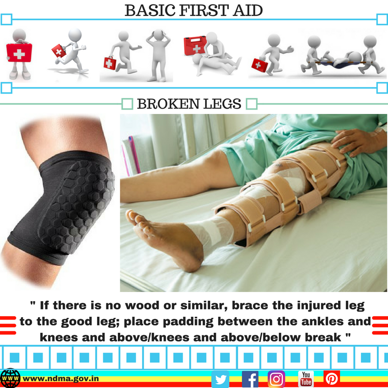 Brace the injured leg to the good leg; place padding between the ankles and knees