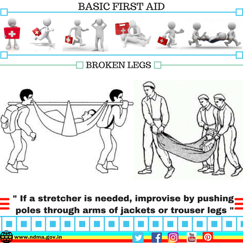 If a stretcher is needed, improvise by pushing poles through arms of jackets or trouser legs