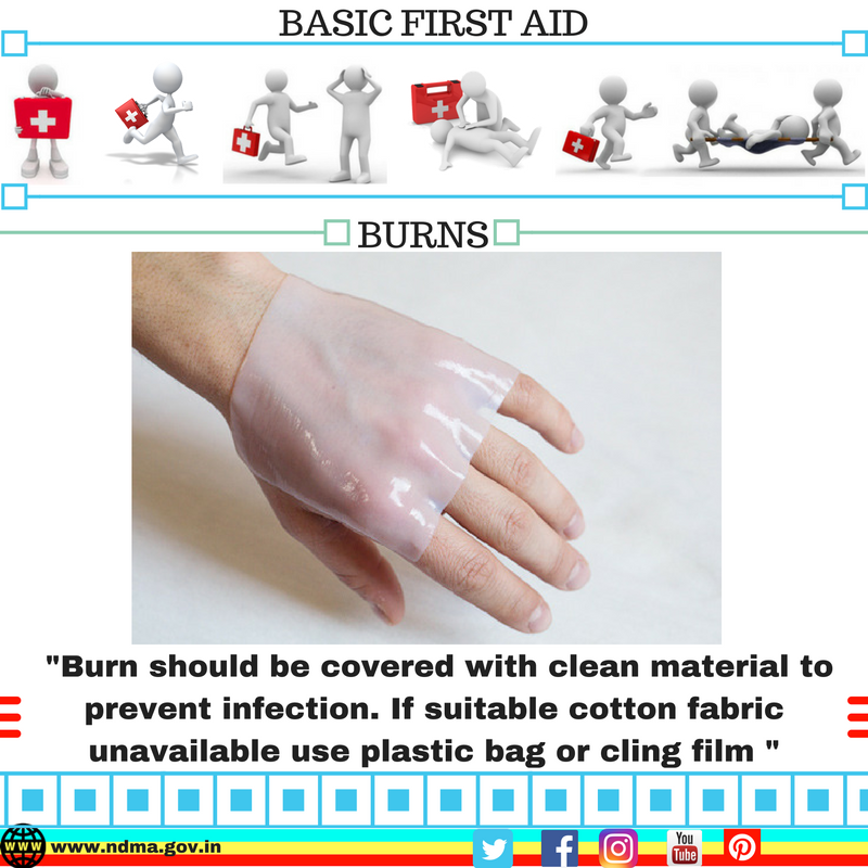 Burn should be covered with clean material to prevent infection. If suitable cotton fabric is unavailable, use plastic bag or cling film